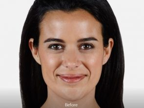 juvederm - before